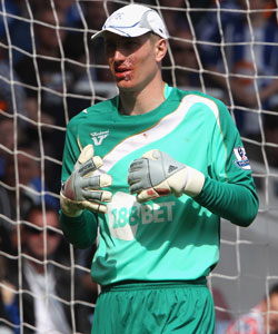 Chris Kirkland plays on for Wigan Athletic after being kicked in the mouth by Carlton Cole of West Ham United